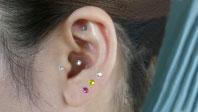 耳つぼセラピー画像